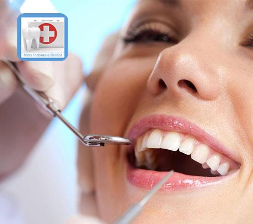 Promo Spesial Pemasangan Gigi Palsu Tipe Jaket Dengan Rp 1 159 000