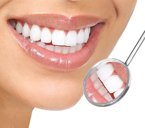 Paket Scalling, Bleaching, dan Pemasangan Kawat Gigi