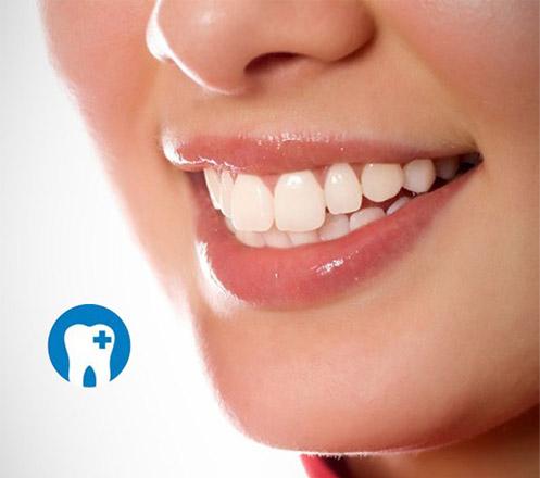 Paket Perawatan Gigi dari Anugerah Dental Care 08