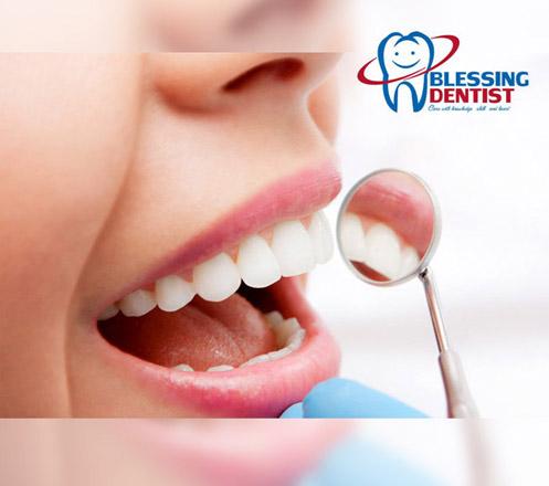 Paket Perawatan Gigi dari Blessing Dentist
