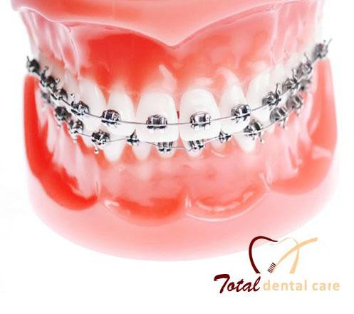 Pemasangan Kawat Gigi Klinik Total Dental Care
