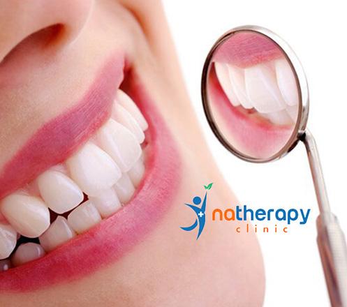 Paket Perawatan Gigi dari Natherapy Dental at Mall of Indonesia 02