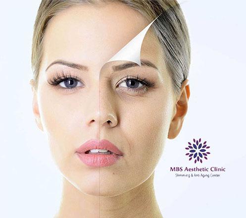 Paket Akupuntur Wajah dan Slimming dari MBS Aesthetic 02